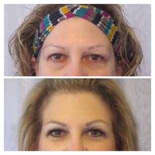 Permanent Eyebrows, Powderfill, Before & After