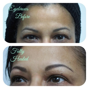 Healed powderfill brow