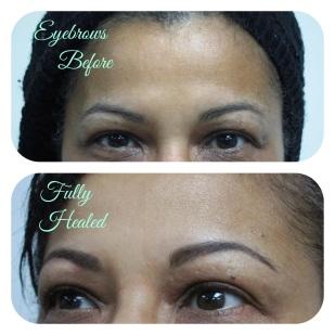 Healed powderfill brow